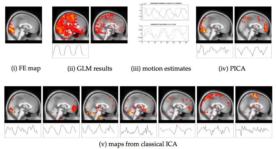 Real FMRI data