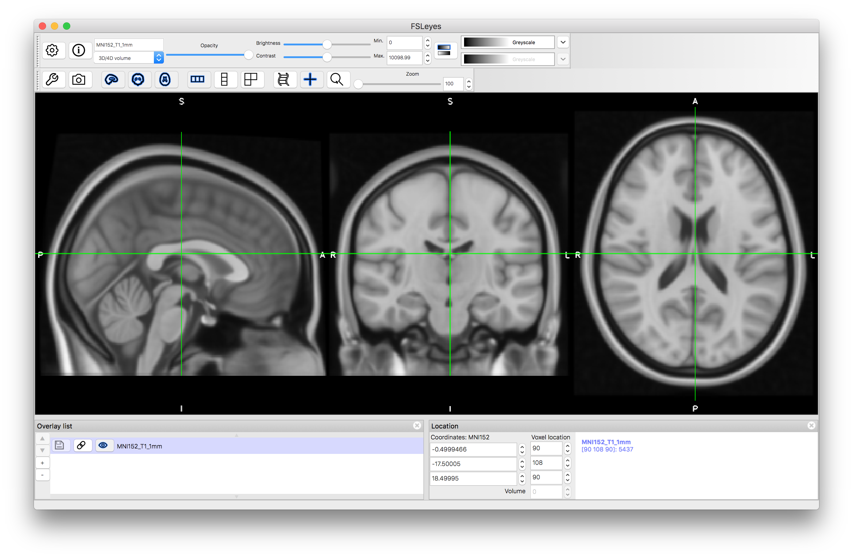 Appendix - Short introduction to brain anatomy for neuroimaging